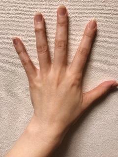 【手の甲の血管が浮き出る】シワやシミが多い残念な「老けた手」